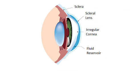 iagram showing lens in the eye